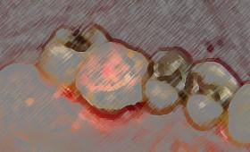 Einsatz von Solcoseryl bei Schleimhautexcisionen