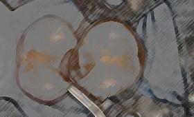 Seitenzahnfüllungen mit Venus Kompositmaterial