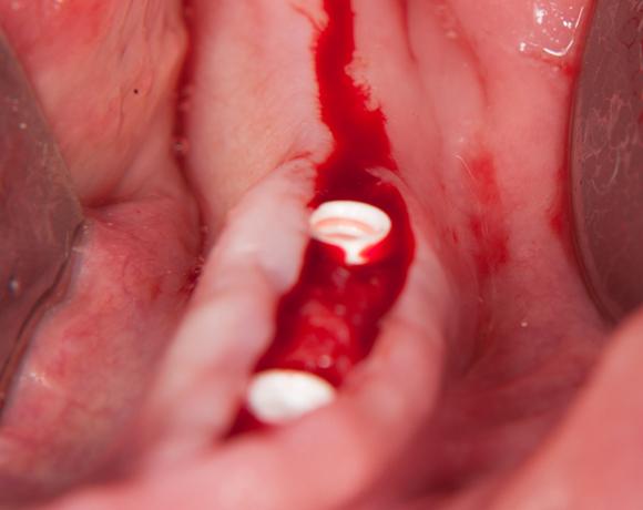 Zeramex loc Locator, Zeramex P Implantat