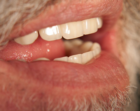 Zeramex loc Locator, Zeramex P Implantat, Novaloc, Valoc, PEEK Gerüst